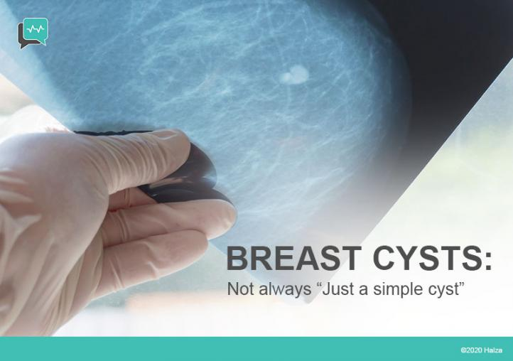 Is There More to Breast Cysts?