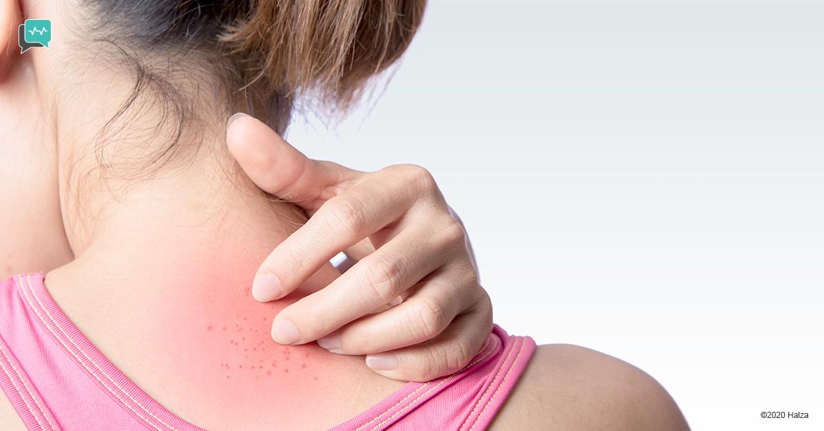 zika symptoms low-grade fever itchy rash joint pain headache conjunctivitis halza digital health
